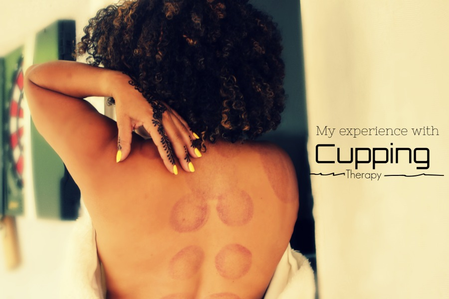 My Experience With Cupping For Lower Back Pain